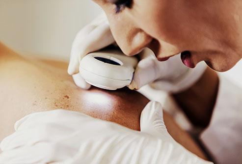 cancer - Changements dans votre peau