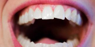 Tâches sur les dents