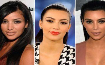 Ces stars qui ont eu recours à la chirurgie esthétique